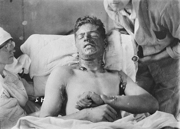 Канадский солдат после поражения ипритом. 1918 г.
