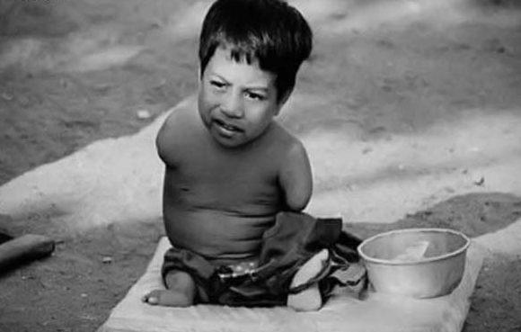 Последствия применения ОВ во Вьетнаме.