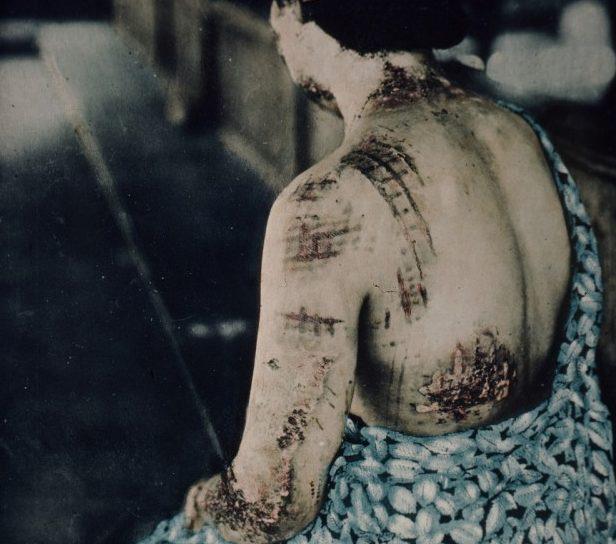 Ожоги тяжелой степени. На коже остались узоры от кимоно. Август, 1945 г.