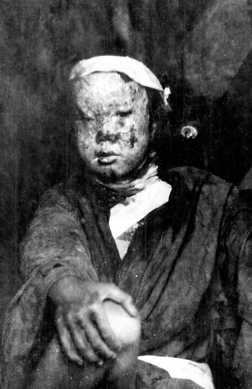 Ожоги от взрыва. Август 1945 г.