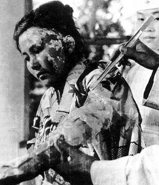22-летняя жертва бомбардировки проходит лечение в больнице. 6 октября, 1945 г.