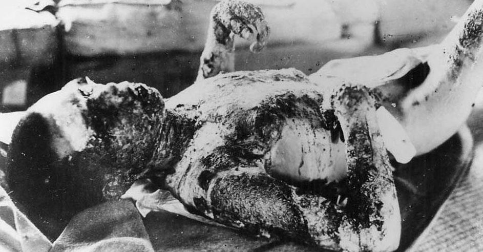 Жертвы бомбардировки. Август 1945 г.