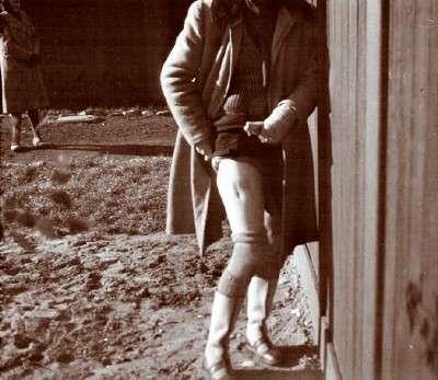 Заключённая Богумила Бабинская, показывает шрамы от четырёх глубоких порезов на бедре, полученных в результате медицинских экспериментов. Фотография тайно сделана в лагере польскими членами Сопротивления.