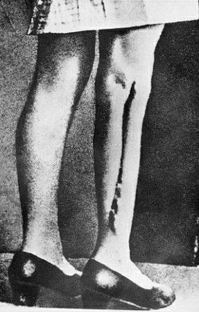 Свежие швы после проведения операций по трансплантации нервных, мышечных и костных тканей, тайно сфотографированные членами польского Сопротивления.