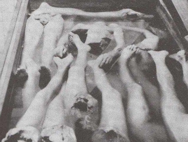«Отходы производства» в медицинском центре лагеря, где экспериментировали с пересадкой конечностей женщин.