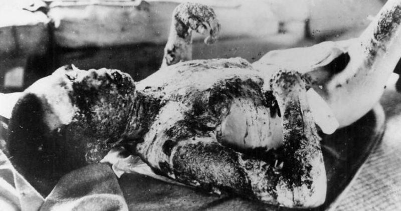 Пострадавшие дети Хиросимы от атомной бомбардировки. Август 1945 г.