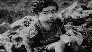 Раненные дети в Нагасаки после атомной бомбардировки. Август 1945 г.