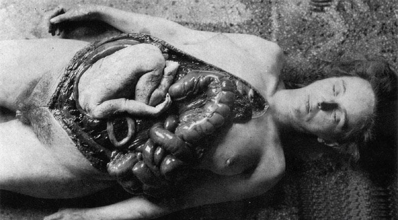 Сотрудники «Отряда 731», сделавшие вивисекцию беременной после изнасилования.
