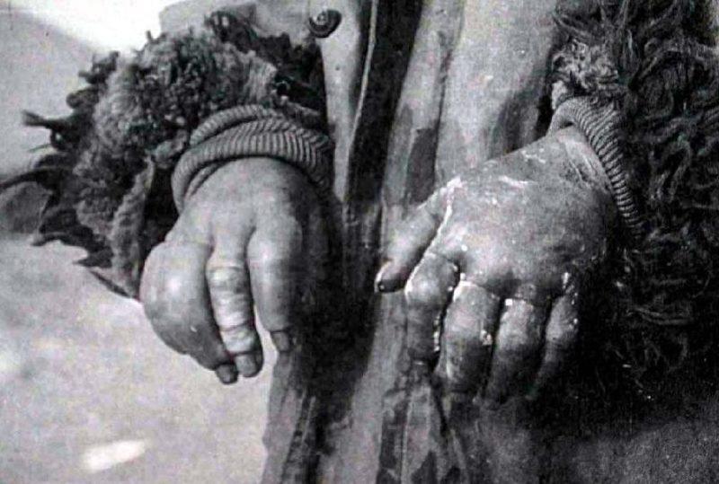 Обмороженные руки - материал для проведения экспериментаторов.