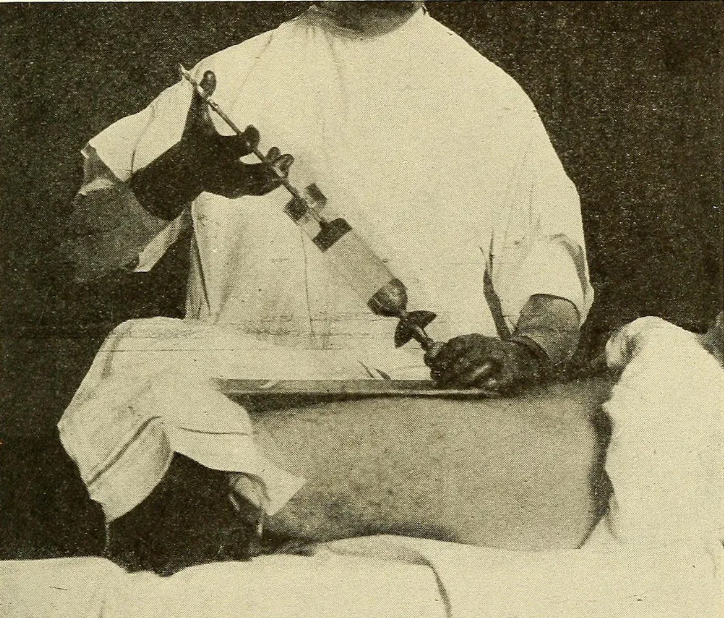 Лечение гонореи - инъекция в уретру.