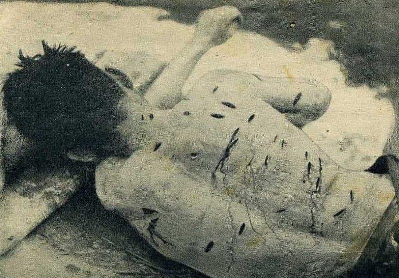 На теле крестьянина Ивахова Б., замученного поляками на Радеховщине, обнаружено 52 раны нанесенных штык-ножом. Октябрь 1943 г.