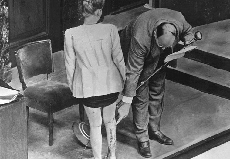 Осмотр шрамов на ноге польской свидетельницы на Нюрнбергском процессе как доказательство последствий экспериментов немецких врачей Фрица Фишера и Герты Оберхойзер в женском концлагере Равенсбрюк. 1947 г.