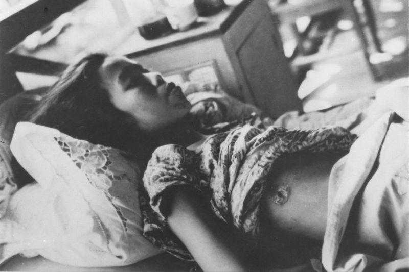 Раненные японскими солдатами филиппинские мирные жители в госпитале в Маниле. Март 1945 г.