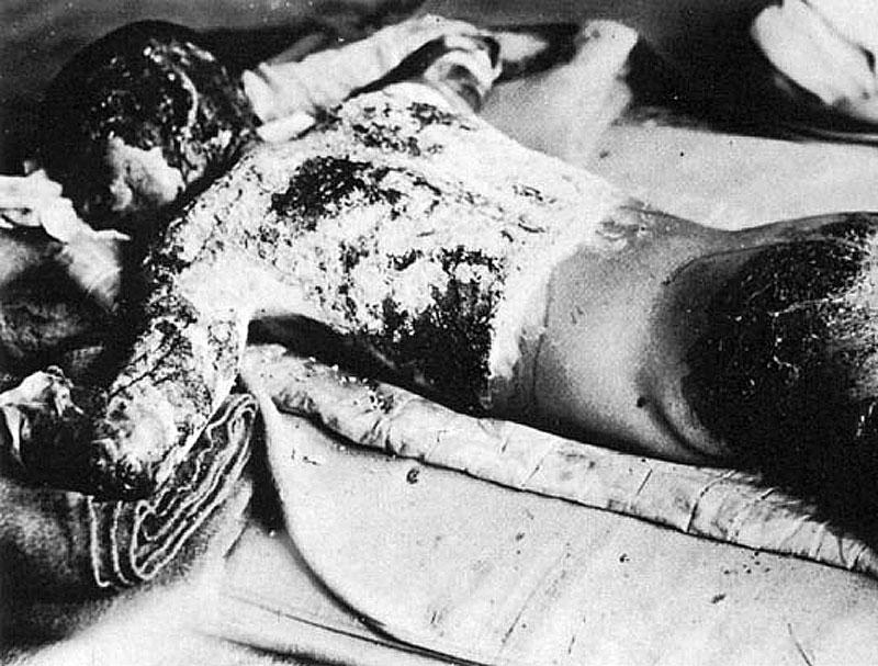 Ожоги от взрыва в Нагасаки. Август 1945 г.